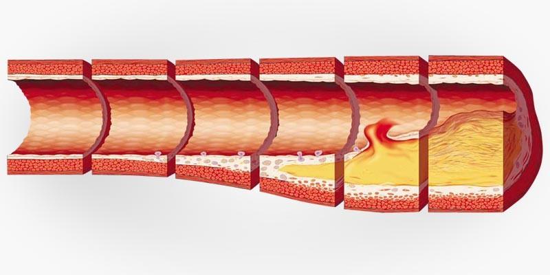 Arteroskleroosi kujunemine